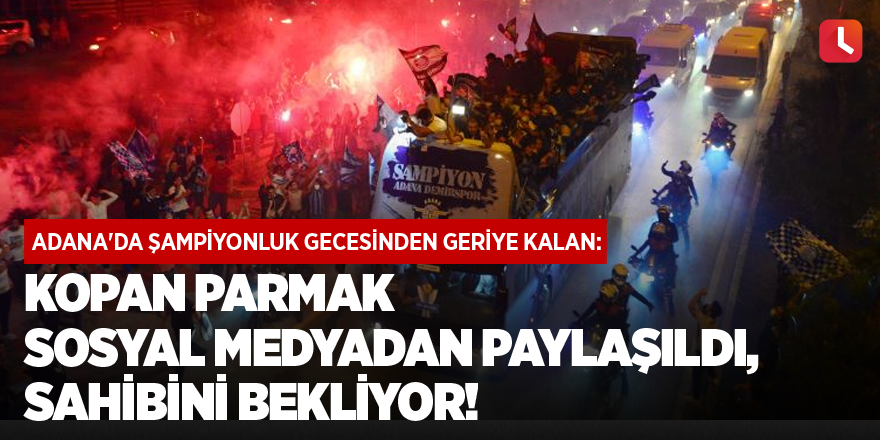 Adana'da kopan parmak sosyal medyadan paylaşıldı, sahibini bekliyor!